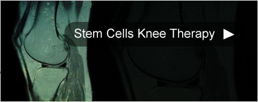 Stem Cells Knee Therapy
